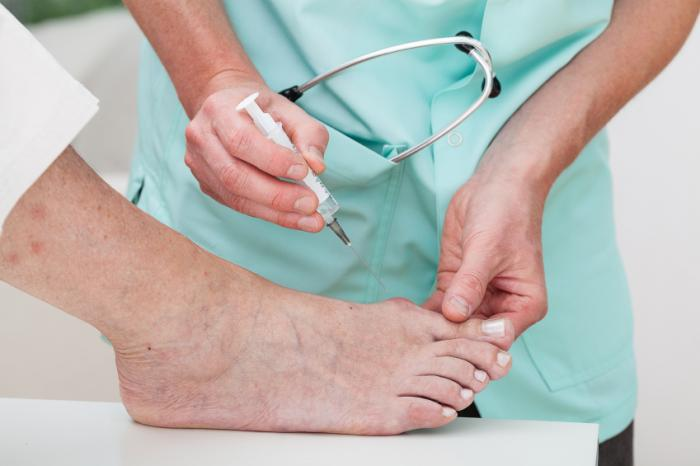 a-bunion-is-treated-with-an-injection